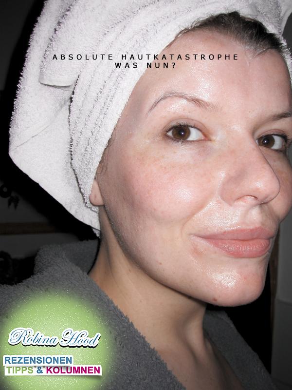 Hilfe Bei Extrem Trockener Und Schuppiger Haut Robina Hood