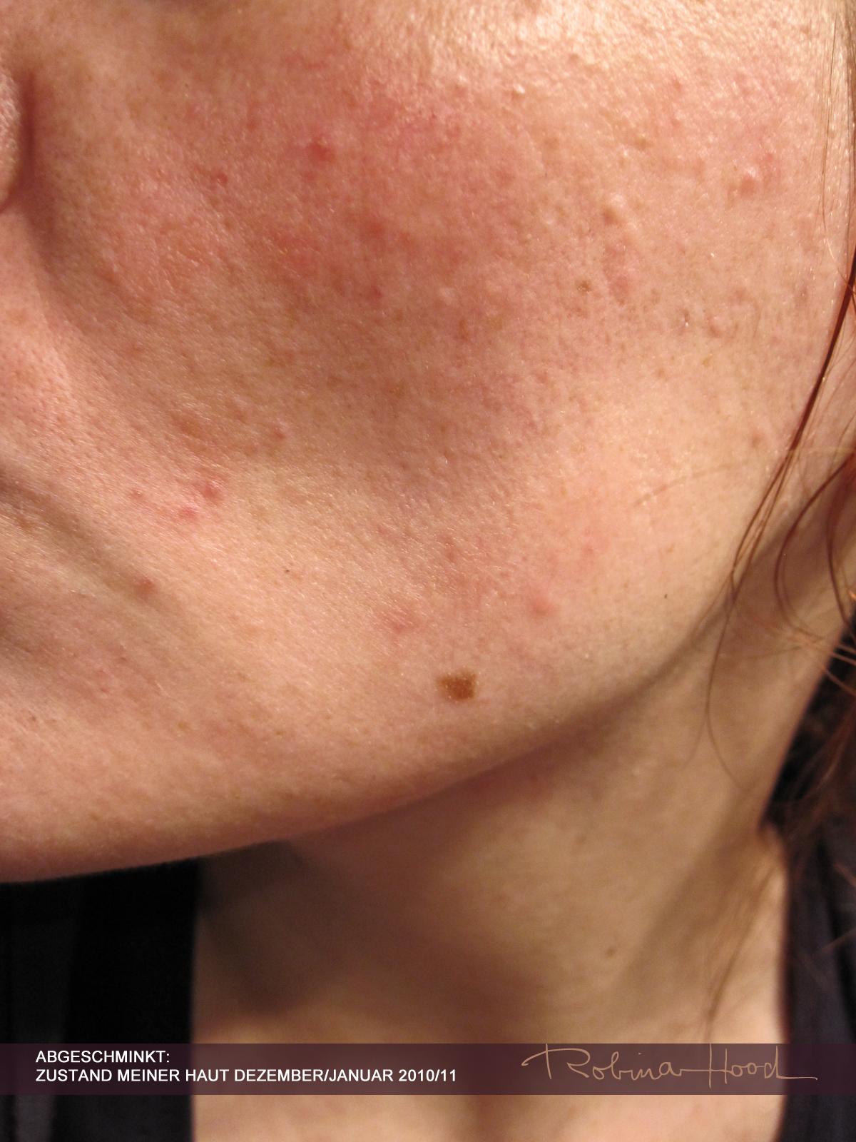 Trockene schuppige Gesichtshaut