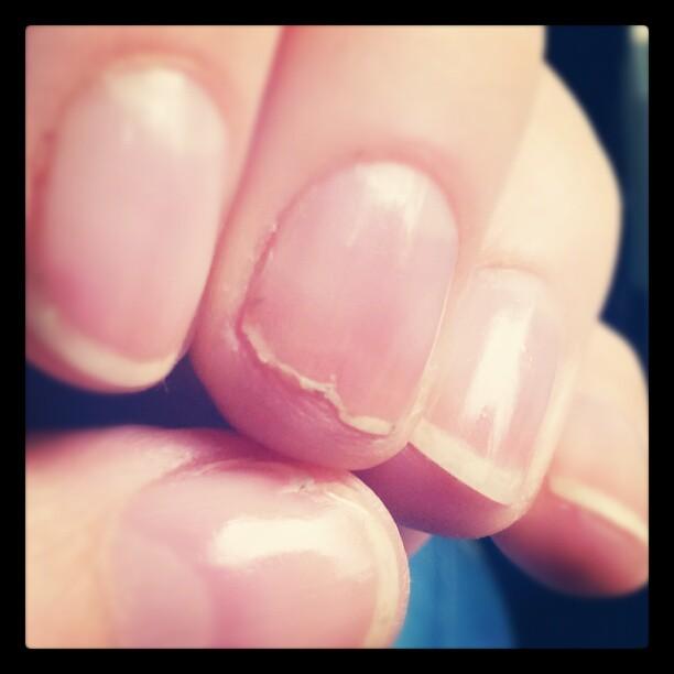 Nägel durchs Lackieren (Nagellack, Nagellackentferner) total kaputt und eingerissen