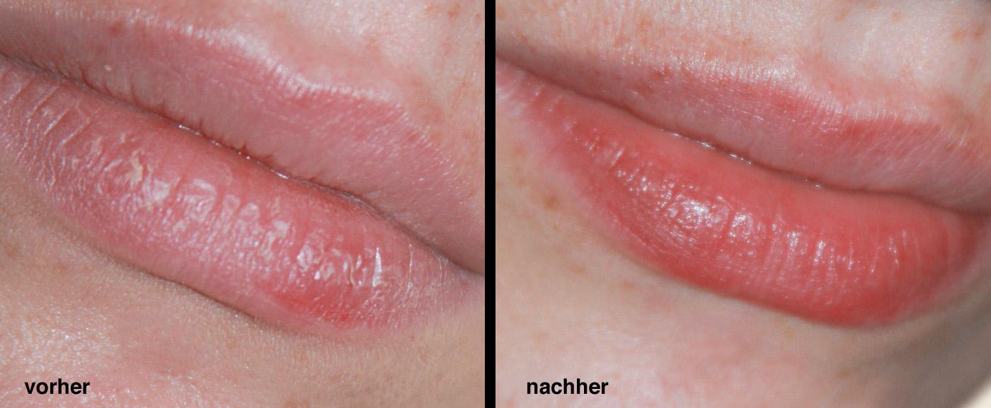 Vorher-Nachher-Fotos: links vor dem Peelen | rechts nach dem Peeling mit Basenpulver