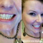 Erstbehandlung mit Crest D WHITE Whitestrips Bleaching / Whitening Dental Treatment Foto