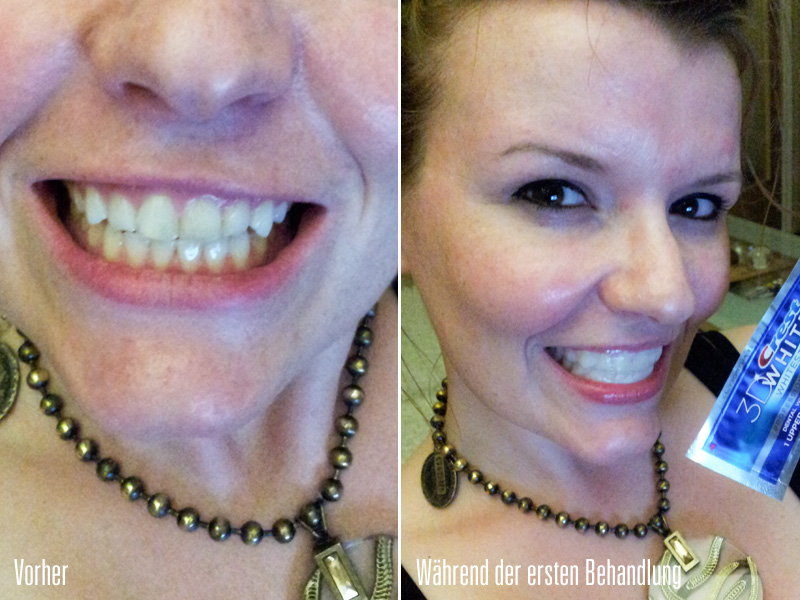 Erstbehandlung mit Crest §D WHITE Whitestrips Bleaching / Whitening Dental Treatment Foto