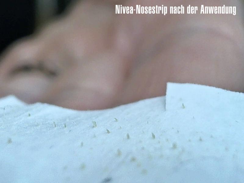 testbericht mitesser auf nase und kinn entfernen mit nivea clear up strips robina hood. Black Bedroom Furniture Sets. Home Design Ideas