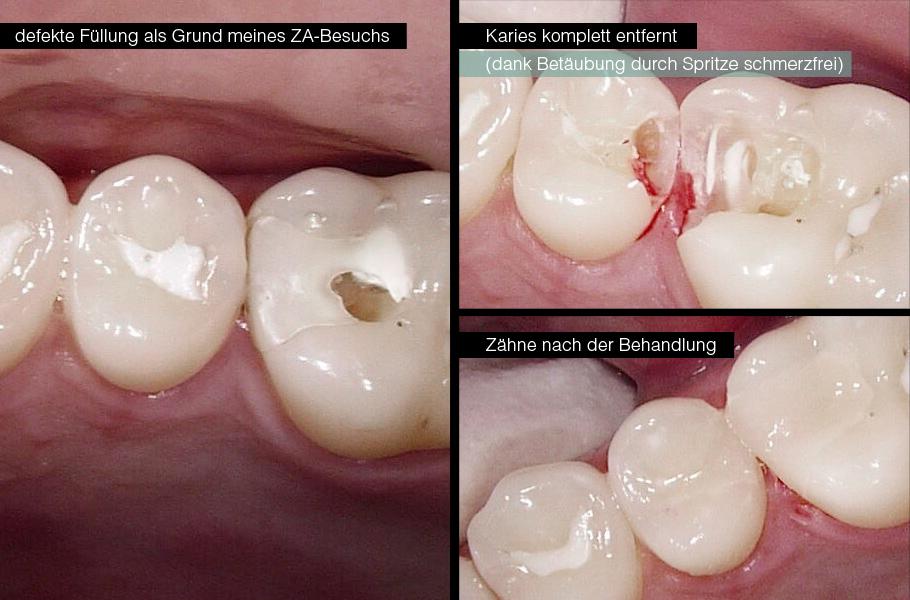 Schadhafte Füllung im Bereich der Backenzähne / Mahlzähne vor der Behandlung, während der Behandlung und nach der Behandlung