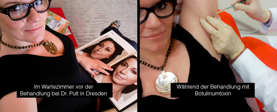 Robina Hood Schweißdrüsenbehandlung mit Botox, Botoxbehandlung Achseln, Botulinumtoxin gegen Hyperhidrose bei Dr. Pult in Dresden am Postplatz 6