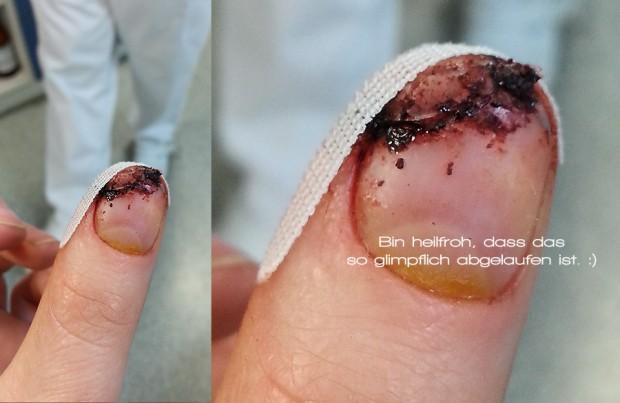 Heilungsprozess der abgeschnittenen Daumenkuppe nach vier Tagen