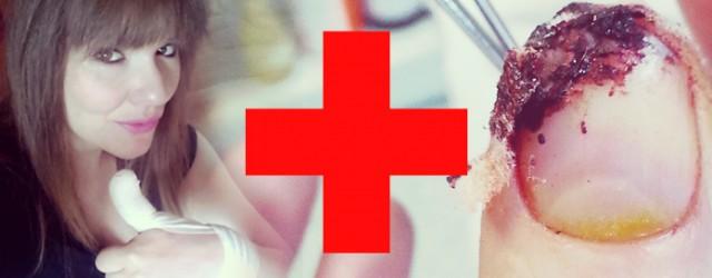 fingerkuppe-abgeschnitten-abgetrennen-messer-schnitt-robina-hood-chirurg-chirurgie-heilung-preview