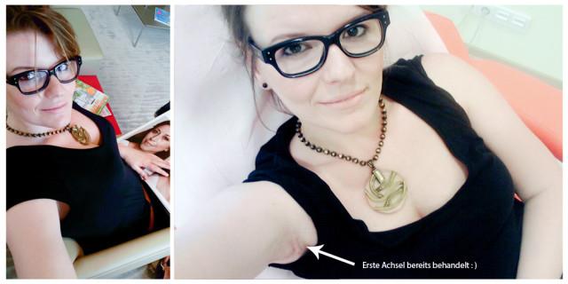 Schönheitschirurgie in Dresden - Botox gegen Hyperhidrose, Postplatz, Dr. Pult Erfahrung