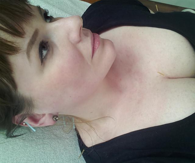 Erfahrung Akupunktur gegen Tinnitus Dresden Robina Hood