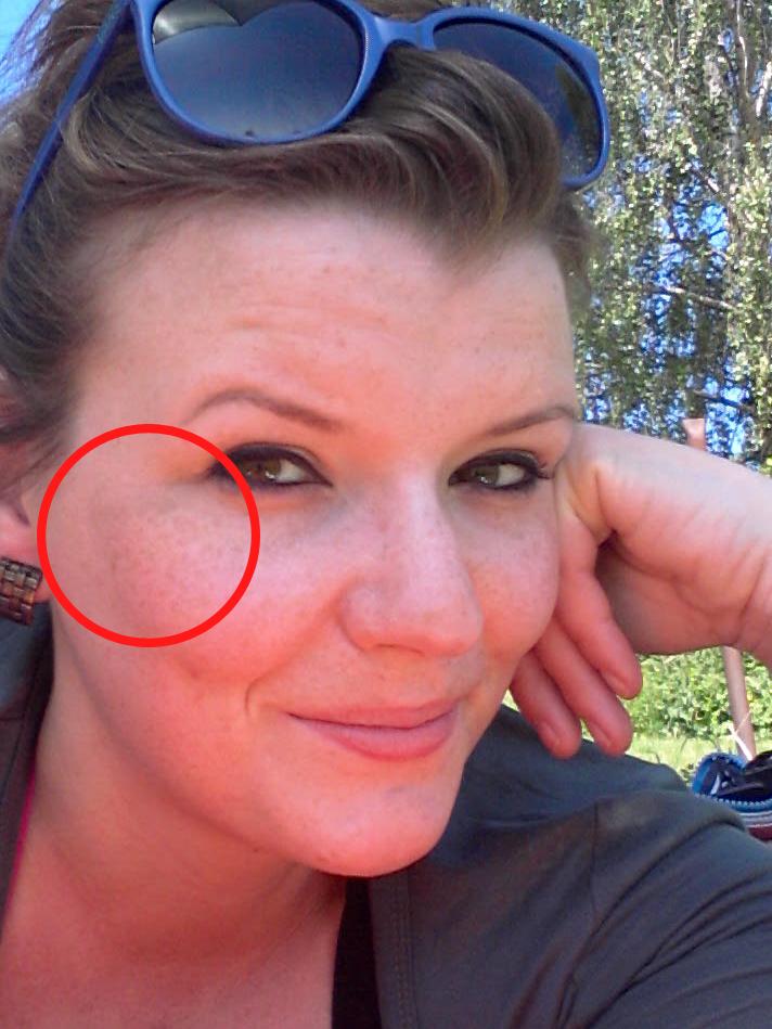 Robina Hood fragt sich: Sommersprossen, Melasma, gutartig oder gefährlich?